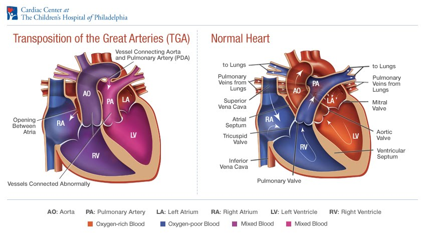 3D-печать-полноразмерная модель сердца маленького ребенка